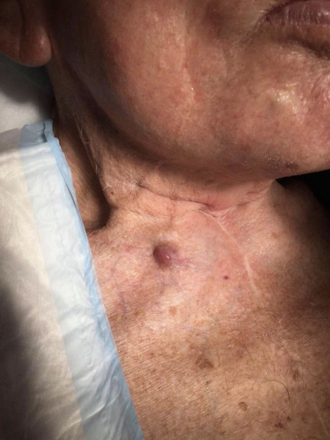 A 94 y.o. male presents a nodule on the right anterior neck, present for two years and growing
